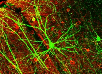 a pyramidal neuron from the hippocampus, stained for green fluorescent protein.